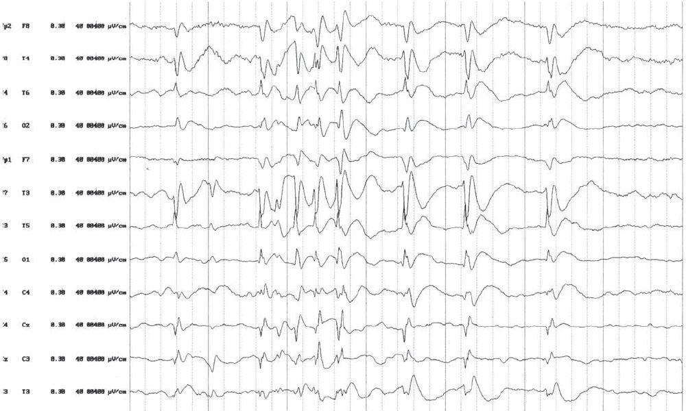 EEG nález pred nasadením liečby ACTH. V spánkovom zápise sú prítomné dve nezávislé ohniská v temporálnych zvodoch obojstranne s generalizáciou.