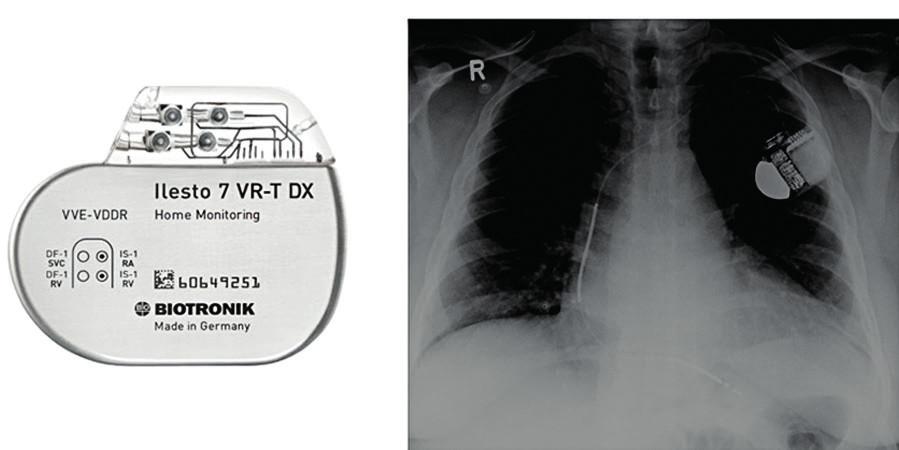Příklad jednodutinového ICD a prostý skiagram hrudníku zachycující defibrilační elektrodu zavedenou do pravé komory srdeční