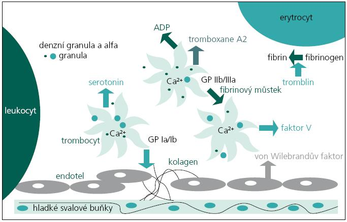 Princip agregace destiček. Obnažený subendoteliální kolagen při porušení cévní stěny stimuluje trombocyty k adhezi ke stěně cévní prostřednictvím glykoproteinových (GP) receptorů Ia a Ib. Destičky se kontrakcí svého cytoskeletu jednak zakulatí, jednak vysílají dlouhé tenké filopodie. Těmi se mezi sebou zachycují, za pomoci exprimovaných GP receptorů IIb a Ia. Na receptory se váže fibrinogen, polymerizující účinkem trombinu na fibrin. Von Wilebrandův faktor (vWF), produkovaný endotelem, a faktor V, produkovaný rozpadajícími se destičkami, upevňují (spolu s endoperoxidy a tromboxanem vznikajícím z kyseliny arachidonové) dimerické vazby fibrinu mezi destičkami a jejich vazbu na endotel. Primární, do té doby reverzibilní agregace, se tak zpětnovazební, amplifikační smyčkou za vyplavení trombocytárních granul stává ireverzibilní. Účastní se zde dva typy granul: menší denzní obsahují zejména adenosindifosfát, kalcium a serotonin a větší světlejší α granula uvolňující směs proteinů, růstových faktorů, fibrinogen, vWF a faktor V. Za samostatný typ granul považujeme lysozomy. Velmi důležitou látkou jsou fosfolipidy obsažené v povrchové membráně destiček, kde vytvářejí podklad pro vazbu a reakce enzymů koagulačního systému. Ve finálním konglomerátu jsou destičky rozpadlé viskózní metamorfózou do splývajícího koagula [3,26].