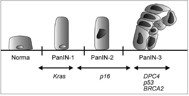 Model histologické a genetické progrese duktálního adenokarcinomu pankreatu