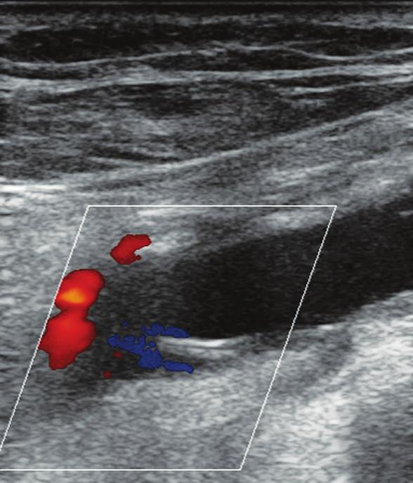 """Zobrazená arteria poplitea v pozdĺžnom reze. Viditeľný """"intimal flap"""" – vlajúca intima Fig. 4. The popliteal artery – longitudinal section. """"Intimal flap"""" is detectable"""