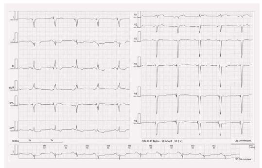 EKG stimulace biventrikulární.