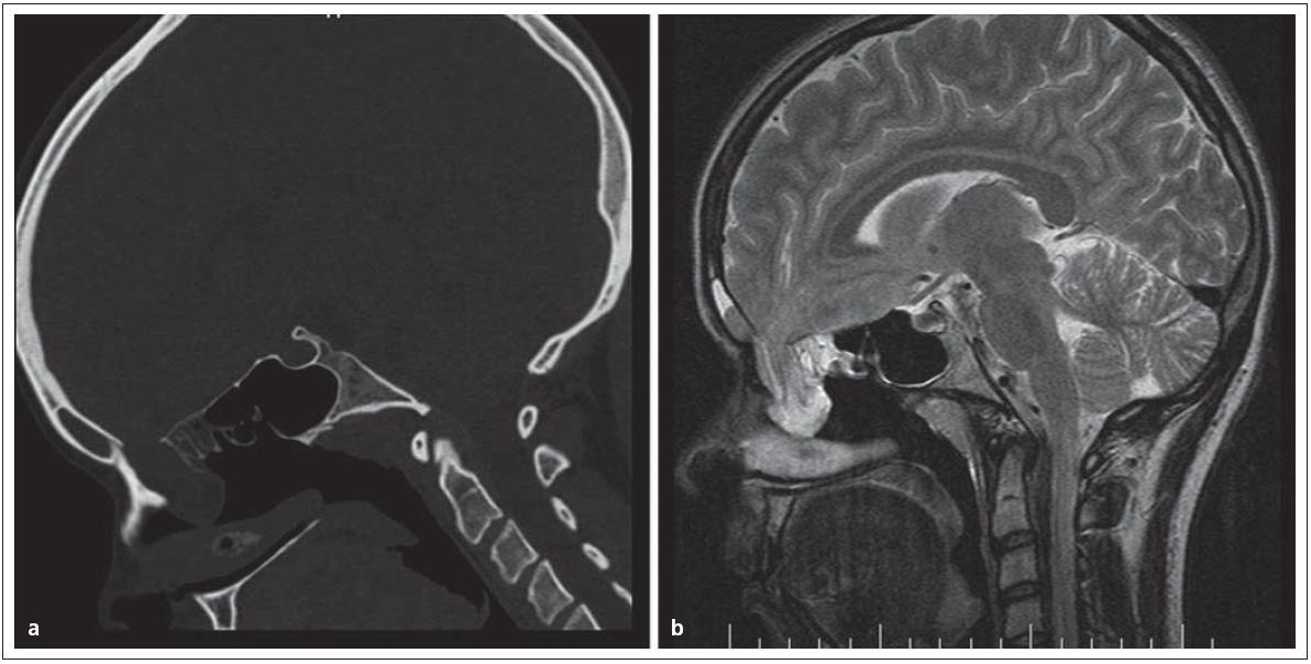 Nazofaryngeální encefalokéla, typ transetmoidální v obraze. Obr. 1a) CT, obr. 1b) MR.