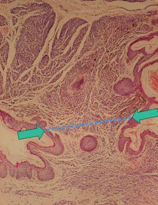 Pendulujúci intradermálny melanocytový névus (HE, 40x): reziduum névu (→) pod líniou rezu (modelová situácia na kompletne odstránenom néve)