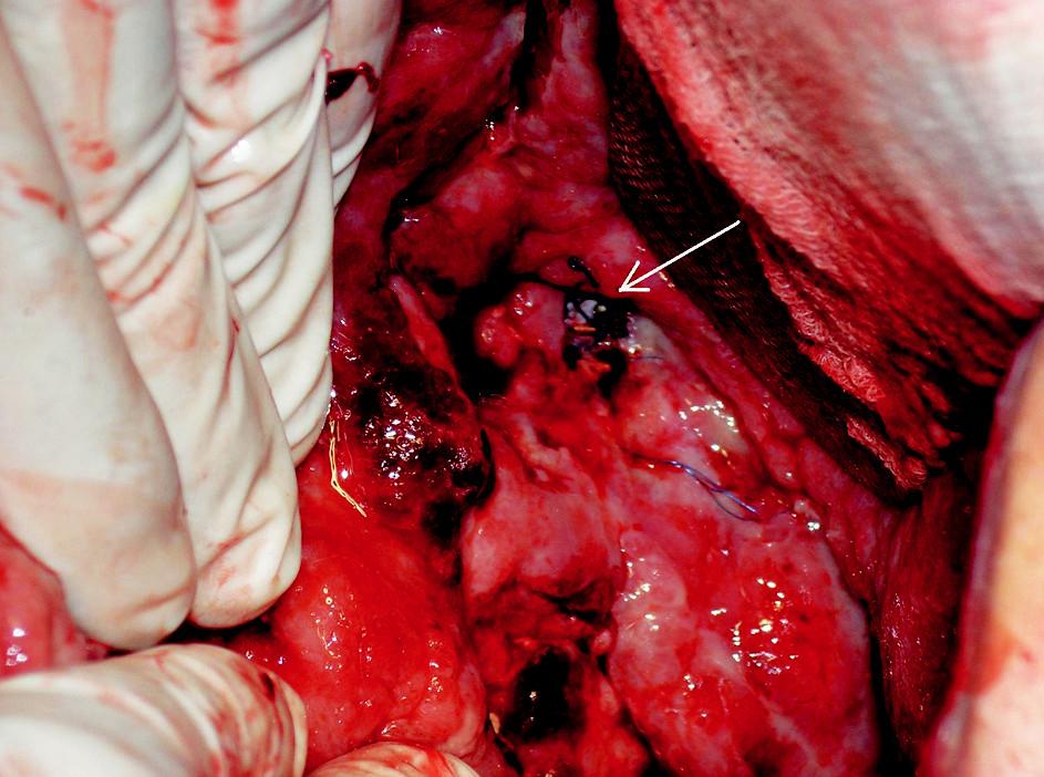 Snímek chirurgické revize. Na spodině dutiny je v defektu žilní stěny patrný stengraft (šipka) Fig. 4. Surgical revision view. The introduced stent is visible through a venous wall defect (arrow)