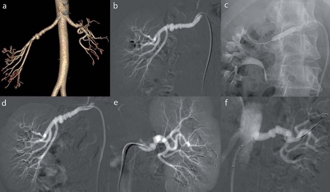 Multifokální fibromuskulární dysplazie u 36leté ženy: a) CT-angiografie renálních tepen ve 3D rekonstrukci. Bilaterálně nález aneuryzmatického rozšíření a krátké stenózy, b) selektivní angiografi e pravé renální tepny, c) PTA, rozvinutý balonkový dilatační katetr, d) kontrolní angiografie s příznivým nálezem, e) selektivní angiografi e levé renální tepny, f) kontrolní angiografie po dilataci. Převzato z [10].
