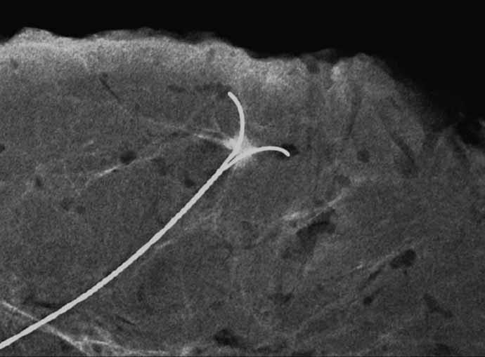 <em>Specimen radiography</em> – lokalizace cípaté léze maligního vzhledu velikosti 4 mm, 52letá žena. Histologicky prokázán smíšený duktální a lobulární invazivní karcinom Grade 3, estrogenové receptory slabě pozitivní, progesteronový receptor negativní67, ki67 17%, Her2 +.