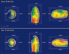Na zátěžové <sup>201</sup>Tl SPECT vyšetření byl odeslán 77letý pacient s echokardiografickým nálezem difuzní hypokinézy levé komory s apikální akinézou, EF 25 %. Na tomografických řezech (a) i polárních mapách (b) je zobrazen ischemický, ale viabilní myokard apikálně, anteriorně a laterálně. Kvantitativně je sumační zátěžové skóre (SSS) zvýšeno na 20, zatímco sumační klidové skóre (SRS) je 11. Levá komora je po zátěži extrémně dilatována s částečnou úpravou v klidu (TID poměr = 1,22). (c) Gated SPECT 3D zobrazení endokardiálního povrchu v end‑diastole (ED) a end‑systole (ES). Již v klidu jsou výrazně zvýšené objemy v ED a ES (263 ml, resp. 183 ml), je zobrazena difuzní hypokinéza, klidová EF je 31 %. Po zátěži dochází k dalšímu zhoršení kinetiky anterolaterálně a apikálně, objemy v ED a ES narůstají (295 ml, resp. 232 ml), pozátěžová EF je snížena na 21 %. Následně provedená koronarografie prokázala nemoc tří tepen. Tento nález byl vzhledem k difuznímu charakteru postižení obtížně řešitelný revaskularizací. Za 3 měsíce po vyšetření pacient zemřel na akutní infarkt myokardu.