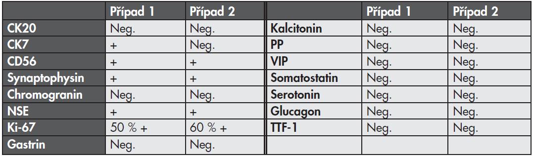 Výsledky imunohistologického vyšetření.