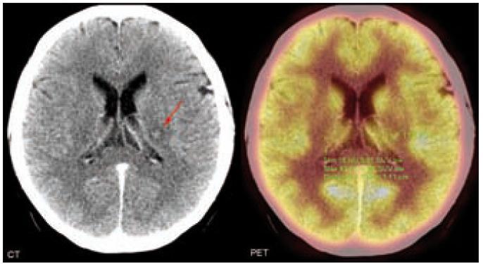 CT a PET mozku. Vlevo v oblasti talamu je patrné drobné ložisko smíšených denzit asi 1 cm v průměru (centrum izodenzní s jádry talamu, lehce hypodenzní okraj). Dále pak ani v zadní jámě, ani supratentoriálně neprokazujeme případné patologické ložiskové změny. Útvary střední čáry bez dislokace. Komorový systém není rozšířený. Ložisko mozku je na PET komponentě pro přítomnost fyziologicky vysoké aktivity pozadí nehodnotitelné.