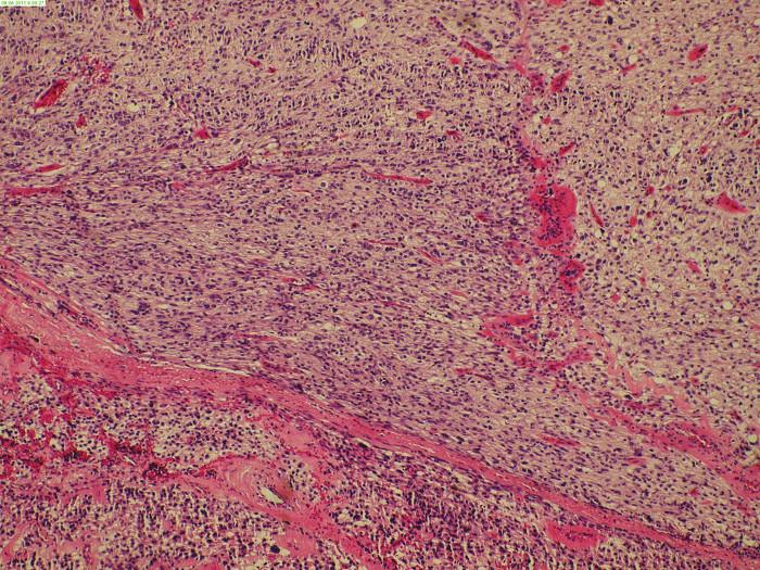 Histologický obraz resekátu Fig. 3: Histological image of EGIST resecate