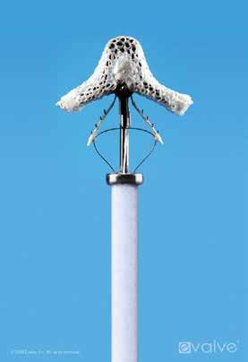 Detail mitrální svorky (MitraClipu): hlavní ramena jsou ovládána samostatně, uchycovací raménka mají také samostatné ovládání.