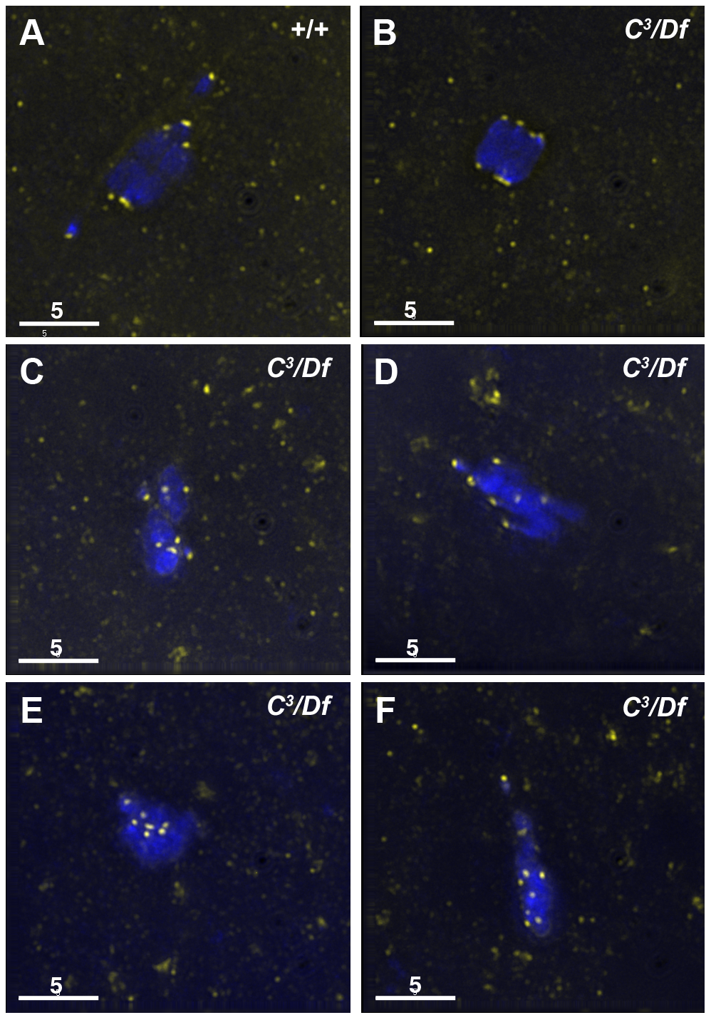 Kinetochores fail to properly biorient during prometaphase I in <i>γtub37C</i><sup>3</sup><i>/Df</i> mutant oocytes.