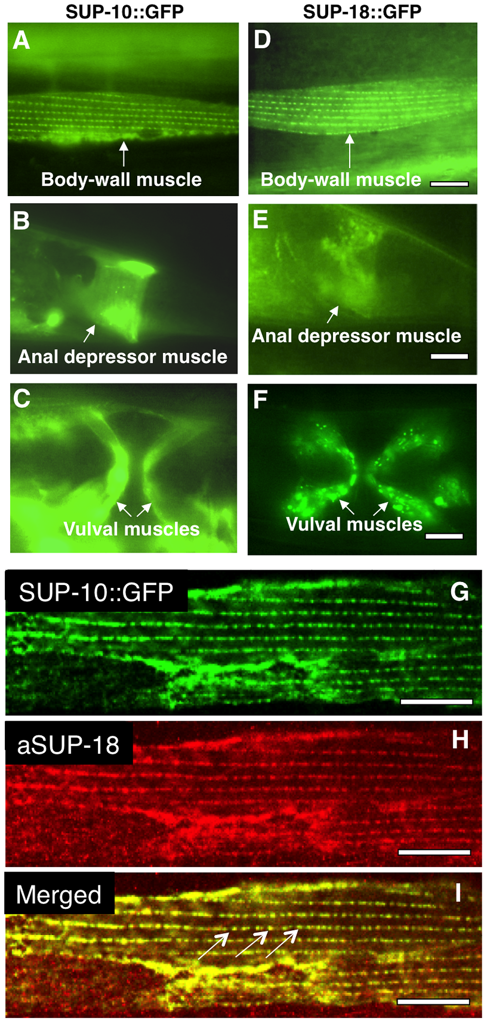 SUP-18 is expressed predominantly in muscles and co-localizes subcellularly with SUP-10.