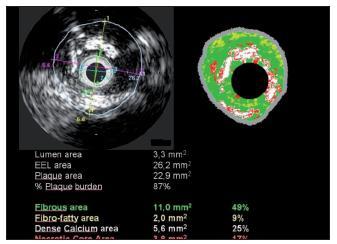Intravaskulární ultrazvuk (levá polovina obrázku) a virtuální histologie (pravá polovina obrázku) stejné stenózy. Intravaskulární ultrazvuk zobrazí lumen cévy a její původní rozměr (lamina elastica), plocha stenózy je 87 %. Virtuální histologie v barevném rozlišení určí charakter plátu a lokalizaci jednotlivých hmot
