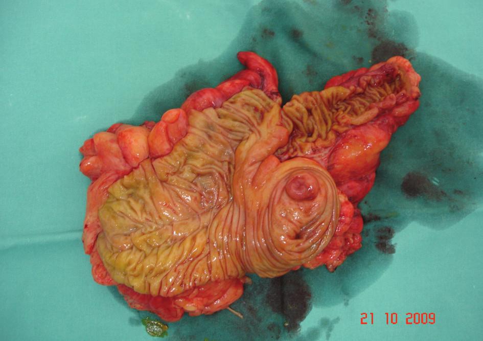 Rozstřižený preparát terminálního ilea, céka, c. ascendens a části c. transverzum Fig. 7. Section of the preparation of the terminal ileum, caecum, ascending colon and a part of the transverse colon