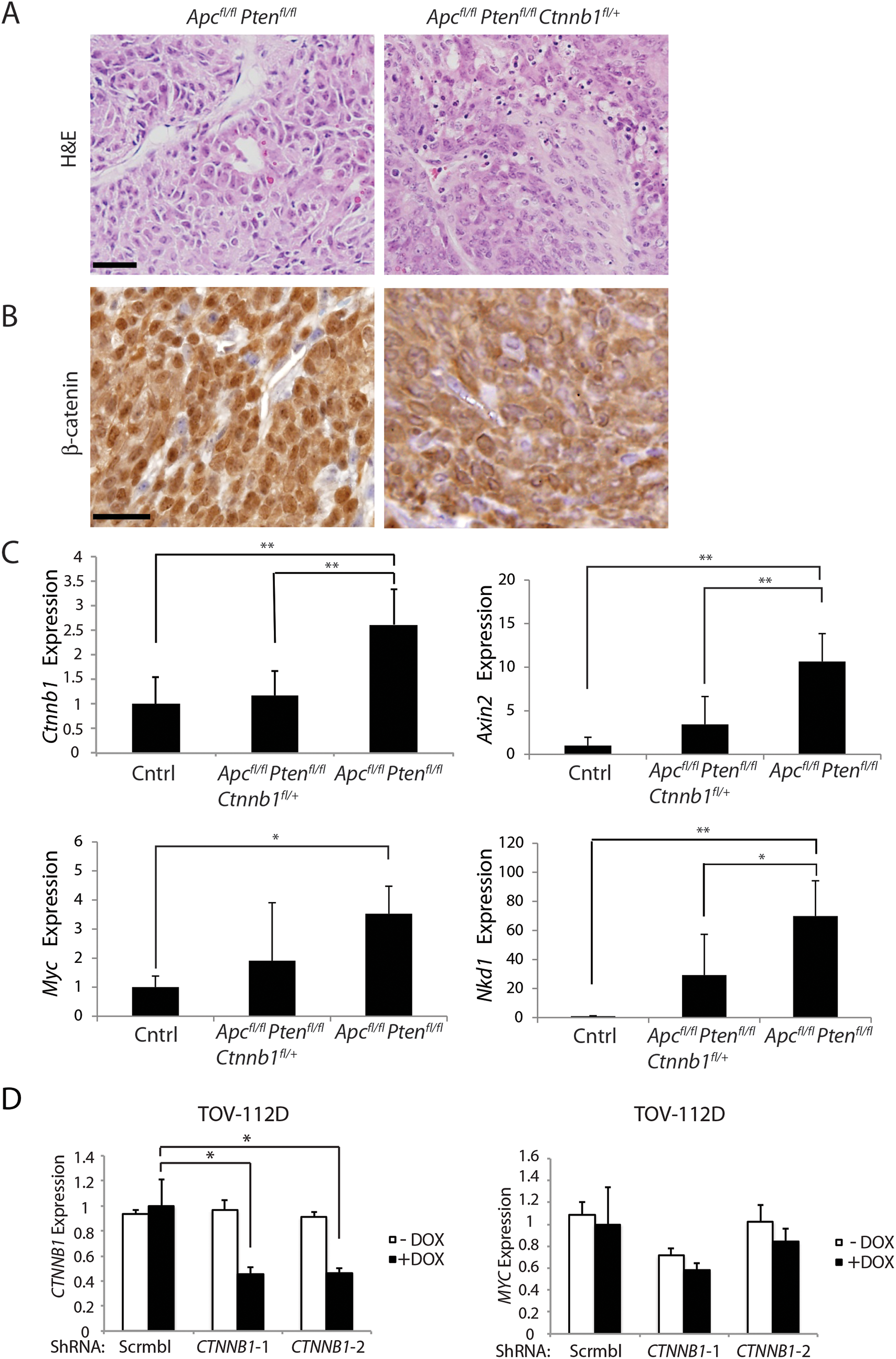 Heterozygous <i>Ctnnb1</i> inactivation does not prevent mouse ovarian endometrioid adenocarcinoma (OEA) development and the reduction in <i>Ctnnb1 dosage or CTNNB1</i> transcripts shows differential effects on selected β-catenin/TCF target genes.