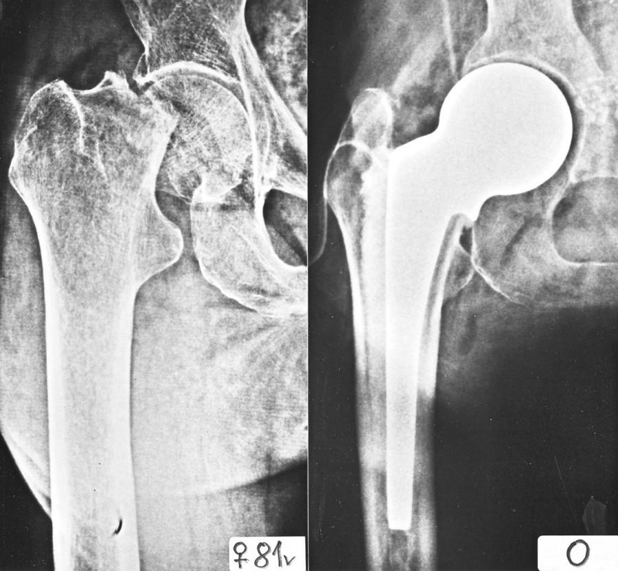 Nový typ cervikokapitální náhrady (Beznoska). A – pacientka, 81 roků. B – stav po operaci. Dobře patrná větší lateralizace dříku, optimální sklon límce z hlediska resekce, rovný tvar dříku Fig. 7. New type of hip hemiarthroplasty. A – patient, age 81 years, B – after surgery
