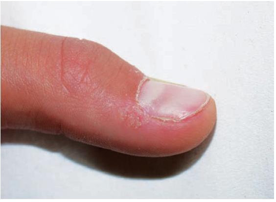Obr. 1a. Periungvální bradavice před léčbou