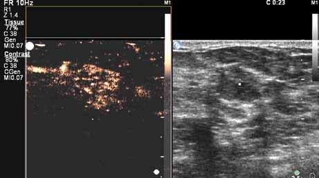 Perfuze karcinomu ve 23. sekundě vyšetření. Karcinom již vykazuje difuzní enhancement. Nadále velmi dobře patrný výrazný cévní kmen (na obrázku vlevo nahoře).