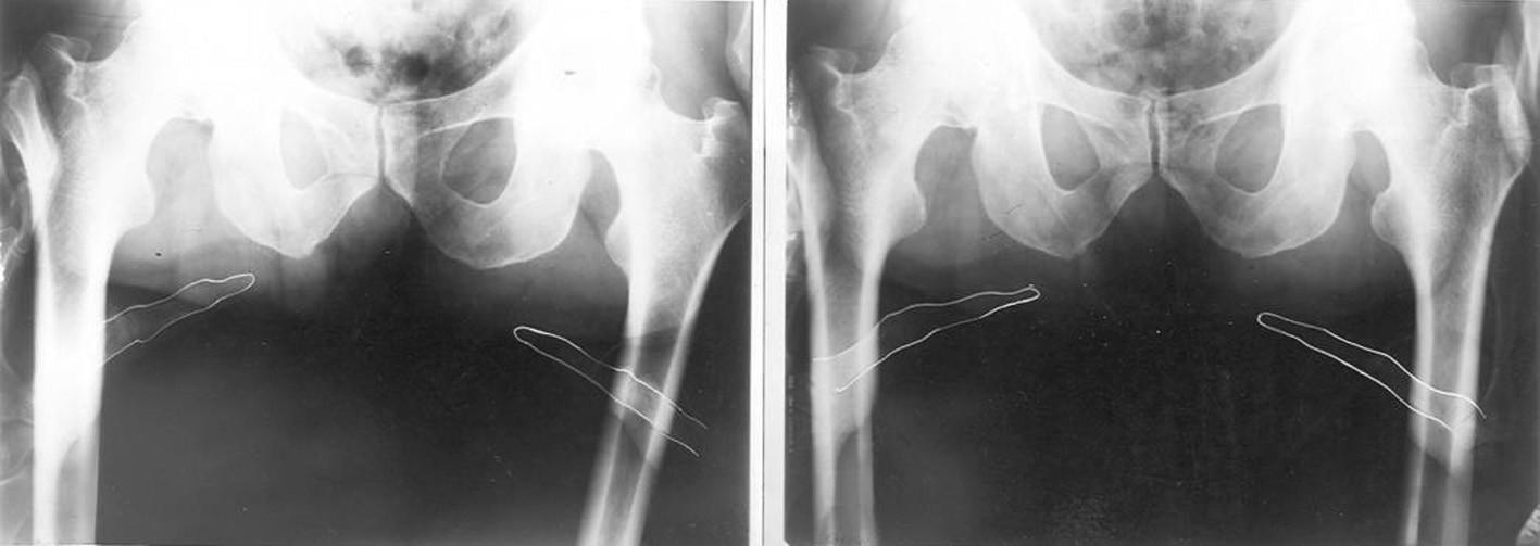 Palpační iluze: před a po terapii se postavení hrbolů sedacích kostí nezměnilo. Změnou napětí měkkých tkání se však změnilo postavení palpujících palců.