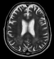 Pacient s DM 1, 79 let. V axiálních FLAIR (a) a T2 vážených (b) obrazech jsou patrná ložiska zvýšeného signálu v periventrikulární a hluboké bílé hmotě obou parietálních laloků. Rozšířené jsou subarachnoideální prostory a Virchow-Robinovy perivaskulární prostory na konvexitách obou mozkových hemisfér (b).