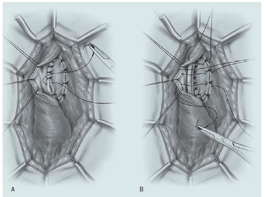 Uretroplastika technikou dorzálního onlay graftu. A – Otevření bulbární části močové trubice podél dorzálního povrchu, přičemž je štěp ze sliznice dutiny ústní suturou fixován ke kavernózním tělesům. B – Uretra je přetočena zpět přes graft.