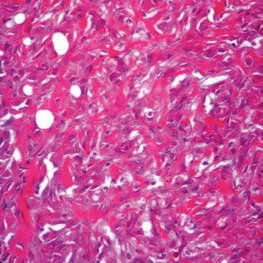 Sarkomatoidní mezoteliom pleury (Slide show Cesar A. Moran, MD)
