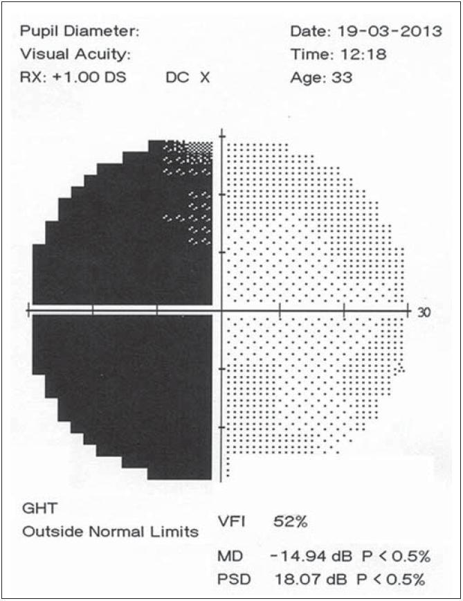 """Perimetrické vyšetření levého oka 10 měsíců po úrazu, temporální hemianopsie přetrvává, vymizela centrální """"úspora""""."""