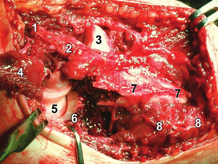 Rozšířený modifikovaný Kocherův přístup – revize proximální ulny: 1 – epicondylus lateralis humeri, 2 – lig. collaterale lat., 3 – hlavice radia, 4 – odklopený m. anconeus, 5 – trochlea humeri,  6 – koronoidální fragment ulny, 7 – diafyzární fragment ulny, 8 – m. flexor carpi ulnaris. Fig. 17: Extended modified Kocher approach – revision of proximal ulna: 1 – lateral epicondyle of humerus, 2 – lateral collateral ligament, 3 – radial head, 4 – retracted anconeus, 5 – trochlea of humerus, 6 – coronoid fragment of ulna, 7 – diaphyseal fragment of ulna, 8 – flexor carpi ulnaris.