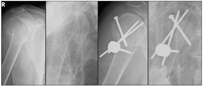 72letá pacientka s dislokovanou tříúlomkovou zlomeninou horního konce pažní kosti ošetřená pomocí Humerusbloku a kanalizovaného šroubu