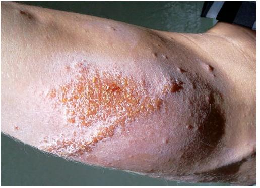 Predlaktie s vezikulami