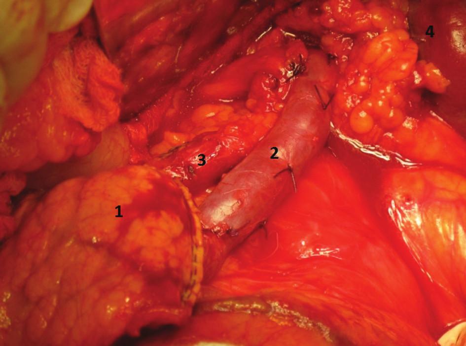Levostranná resekce se zachováním sleziny, stav po odstranění těla a kaudy pankreatu. (1. pahýl pankreatu oddělený staplerem, 2. v. lienalis, 3. a. lienalis, 4. Slezina)