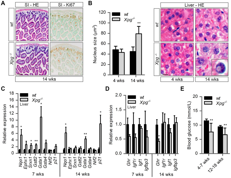 Intestine and liver phenotype of <i>Xpg<sup>−/−</sup></i> mice.