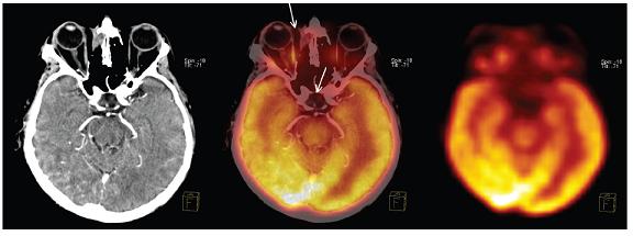 <sup>18</sup>F-FDG PET/CT po 2 cyklech imunochemoterapie lymfomu a po exstirpaci adenomu hypofýzy. Nepřítomnost zvýšené akumulace <sup>18</sup>F-FDG v reziduální tkáni v pravé očnici i v oblasti hypofýzy (šipky) – bez známek přítomnosti viabilní nádorové tkáně v obou lokalizacích. Tomografické řezy proložené rovinou procházející reziduální tkání v pravé orbitě a hypofýzou. Zleva CT, fúze PET/CT, PET.
