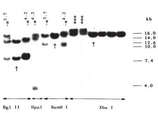 Obr. 4B. Diagnostika α-talasemických delecí  Výsledek Southern blot analýzy prokazující dvě nejčastější α<sup>+</sup>- talasemické delece (–α<sup>3.7</sup>; –α<sup>4.2</sup>)  a triplikaci α-globinových genů.