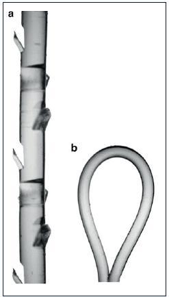 a – zvětšený obrázek vstřebatelného V-Loc stehu s jednosměrně orientovanými ostny; b – oko na konci stehu sloužící k protažení jehlou po založení prvního stehu Převzato: Zorn KC, et al. Novel method of knotless vesicourethral anastomosis during robot assisted radical prostatectomy: feasibility study and early outcomes in 30 patients using the interlocked barbed unidirectional V-LOC180 suture. Can Urol Assoc J 2011; 5(3): 188–194. Fig. 1. a – the magnified image of the Loc absorbable suture with barbs oriented unidirectional; b – the eye on the end of the suture and a needle is used to stretch the setting up the first stitch Source: Zorn KC, et al. Novel method of knotless vesicourethral anastomosis during robot-assisted radical prostatectomy: feasibility study and early outcomes in 30 patients using the interlocked barbed unidirectional VLOC180 suture. Can Urol Assoc J 2011; 5(3): 188–194.