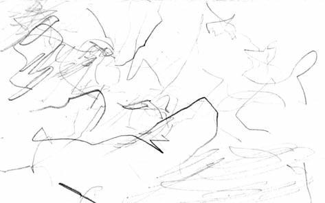 Volná kresba – čmáranice. Vývoj kresby je vzhledem k věku značně opožděný a dále stagnuje (věk 5 let).
