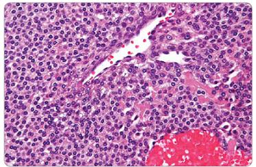 Mikroskopický obraz ukazuje krvné cievy obklopené solídnou proliferáciou dookola kuboidnými epiteloidnými bunkami s dokonale okrúhlymi jadrami a acidofilnou cytoplazmou typické pre glomus tumor [9].
