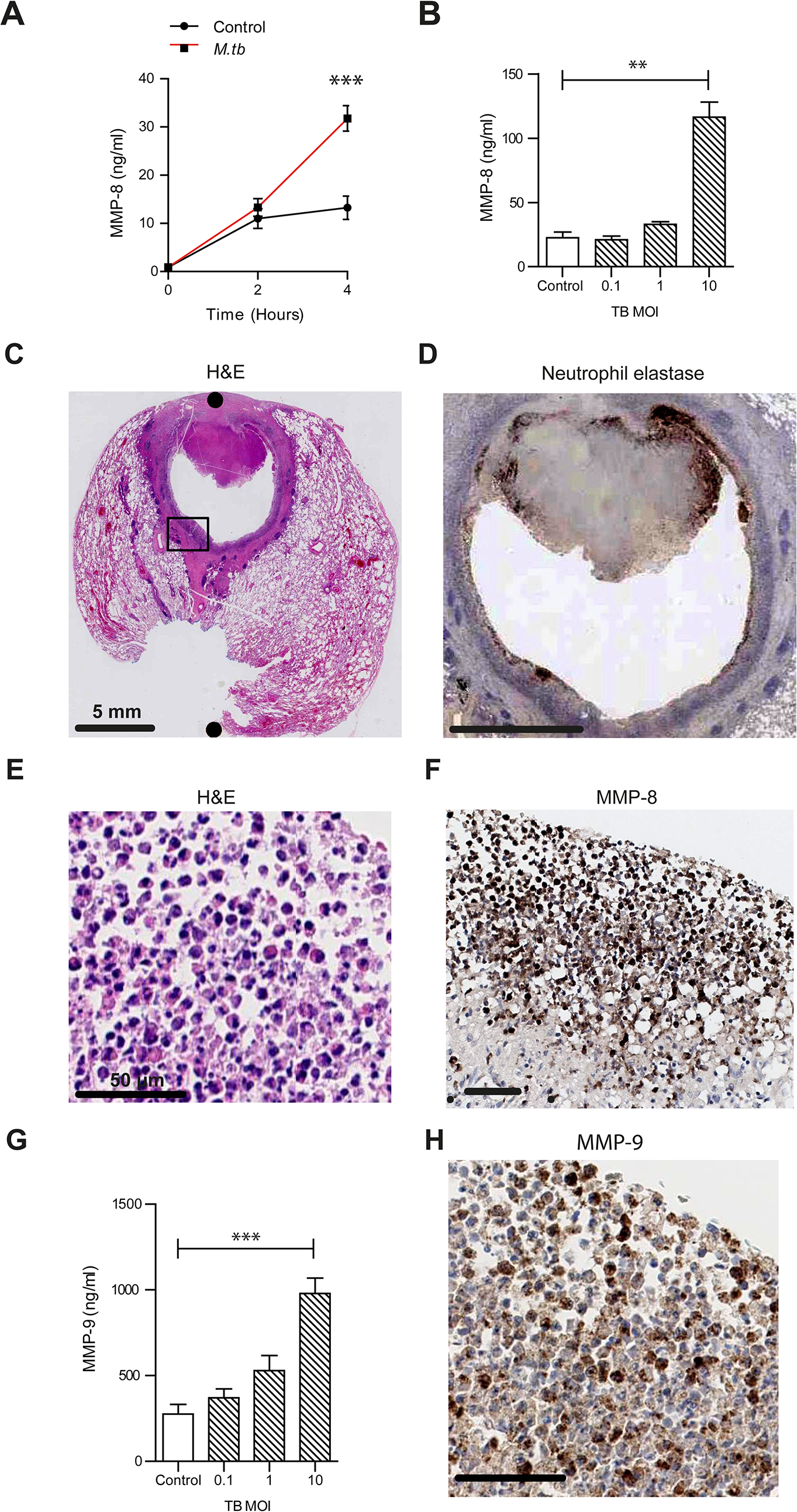 Neutrophil MMP-8 and -9 are upregulated in human TB.