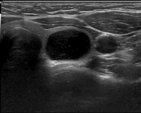 Benigní vzhled uzlu (cystoid).