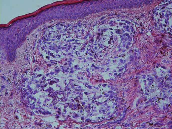 Kožní metastáza ALM, hnízda nádorových buněk v koriu.