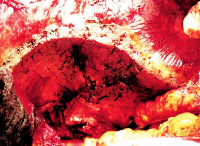Vzhled resekčního okraje po ukončení jaterní resekce Fig. 6. The resection edge after completion of the liver resection procedure