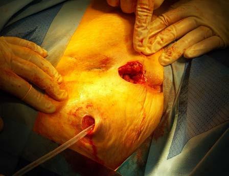 Incize v blízkosti ureteroileostomie a vyvedení vnitřní silikonové části stentu přes ureteroileostomii Fig. 5. Incision near the ureteroileostoma and the inner silicone tube is inserted into the ureteroileostoma