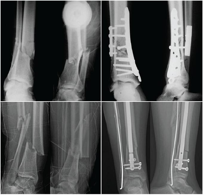 Podobné typy zlomenin s osteosyntézou dlahou a hřebem