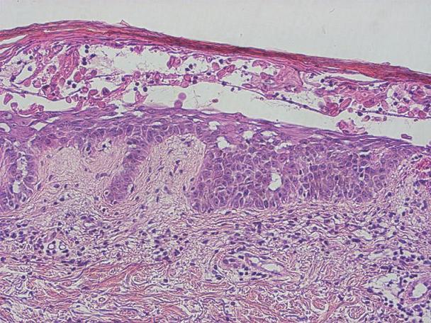 Subkorneální akantolýza