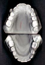 Obr. 2a. Ortodontické dokumentační modely před zahájením léčby.