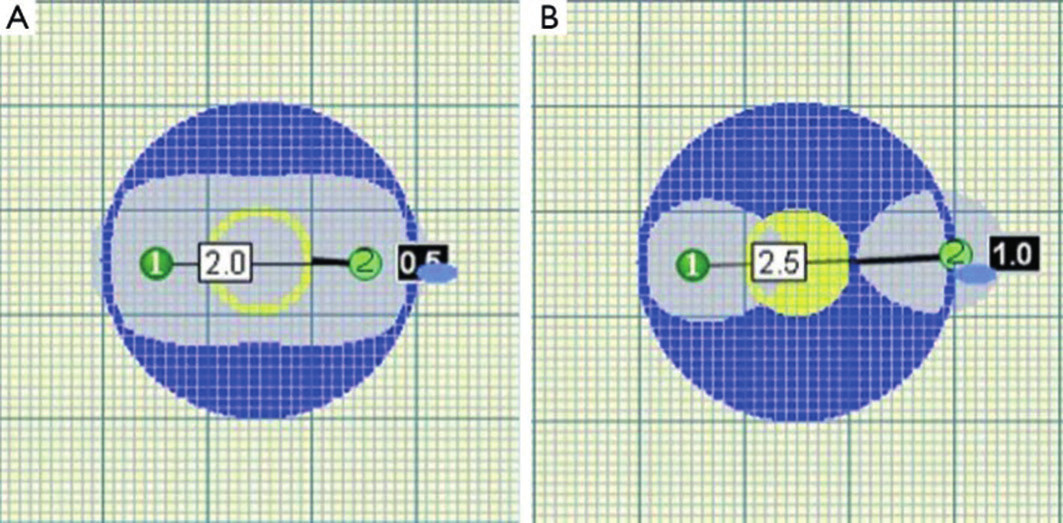 Překročení kritické vzdálenosti elektrod vede k porušení homogenity zóny ablace Fig. 3. Homogenity of ablated area is impaired when critical distance of probes is exceeded