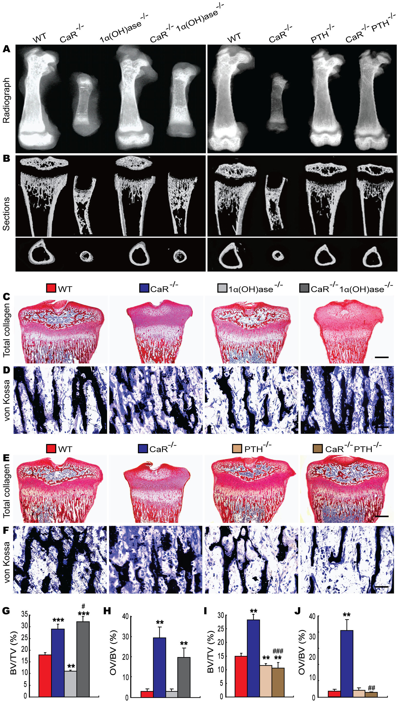Effects of deletion of 1α(OH)ase or PTH on the skeletal development of CaR–deficient mice.