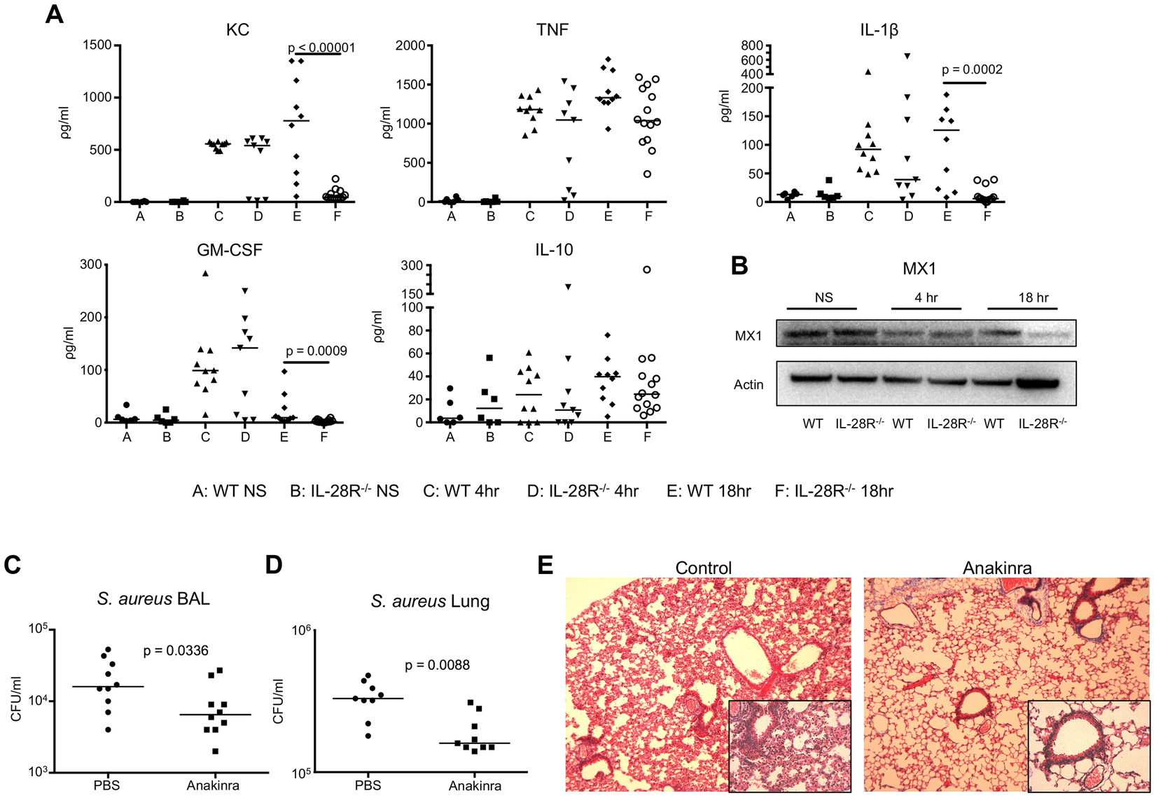 Cytokine production during USA300 infection contributes to pathology.